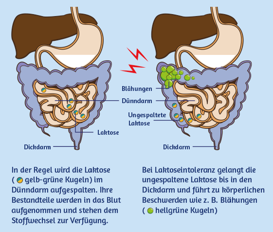 Fehlbesiedlung Dünndarm Symptome